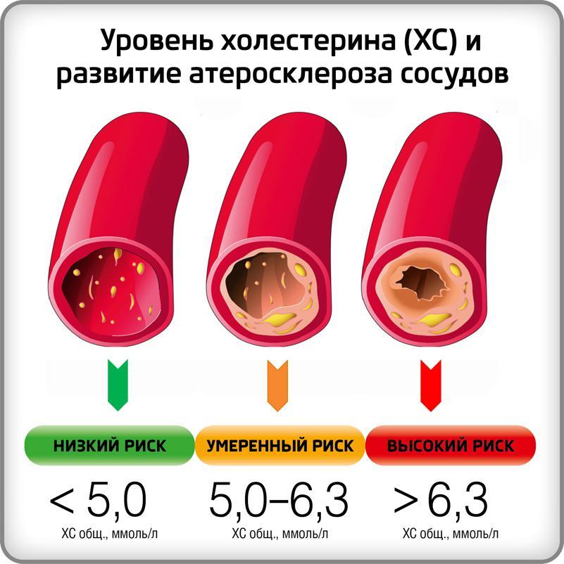 понижения уровня холестерина виноградное масло