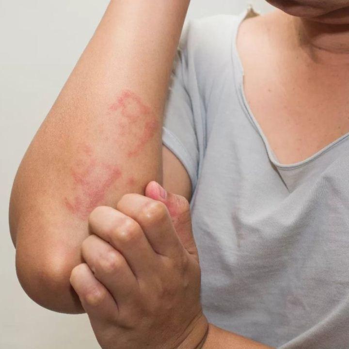 Масло ши при атопическом дерматите