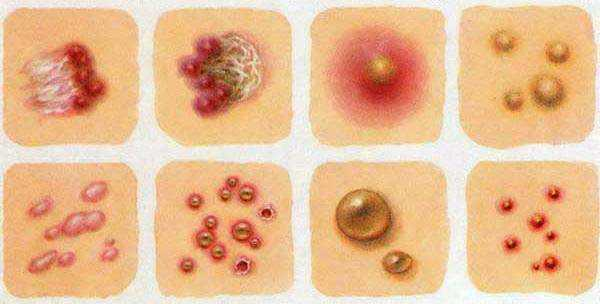 Аллергия на масло кунжута