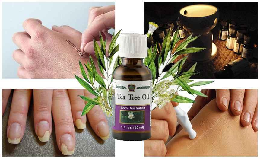 Лечебные свойства масла чайного дерева