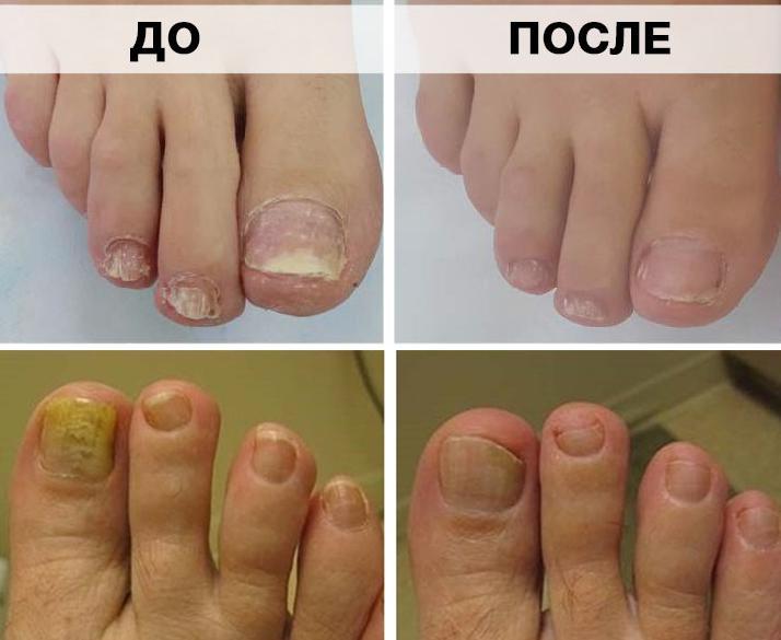 Лечение ногтей маслом чайного дерева