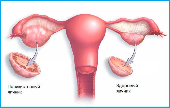Масло тмина для женского здоровья