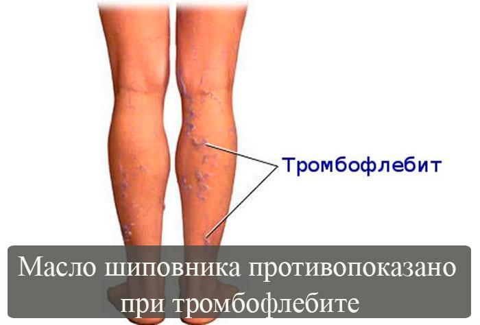 Масло шиповника при тромбофлебите