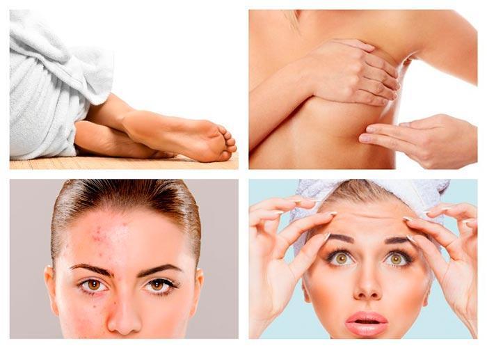 Масло репейника в косметологии и медицине