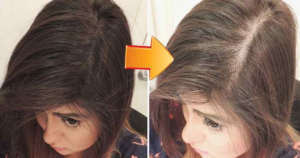 Противопоказания репейного масла для волос